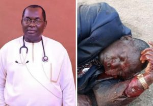 How blood taste group masquerading as unknown gunmen killed Dr.Chike Akunyili in cold blood