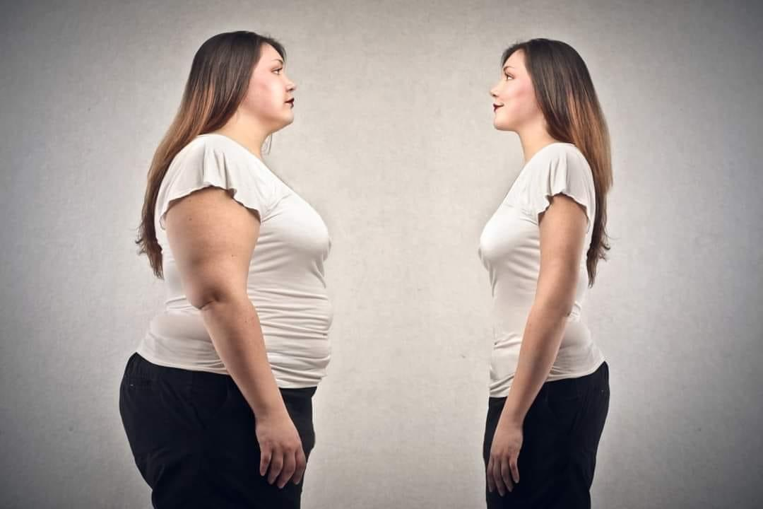 Do I qualify for weight loss surgery quiz (Check)